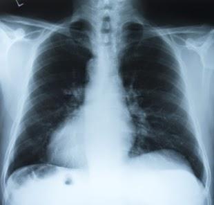 Obat Paru paru Basah